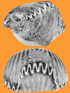 fracture de la troisieme vertebre